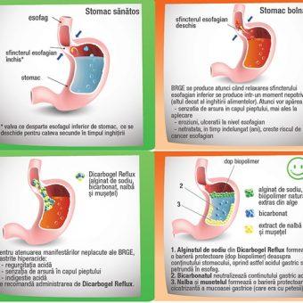 Refluxul gastro esofagian